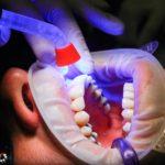 Zła dieta żywienia się to większe niedostatki w ustach a dodatkowo ich zgubę